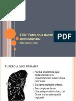 Morfología TBC final