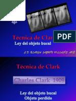 Tecnica de Clark