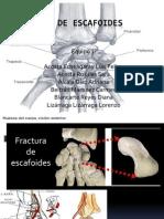 Fractura de Escafoides