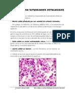Apoptosis en Situaciones Patologicas
