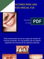 diseodeprotesisparcialfija-100330095049-phpapp02