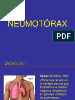 NEUMOTÓRAX MRT ampliado