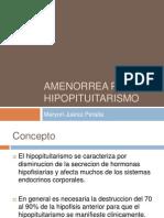 Amenorrea Por Hipopitituarismo