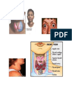 gambar hipertiroid