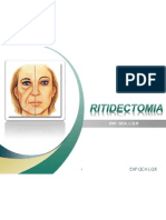 RITIDECTOMIA