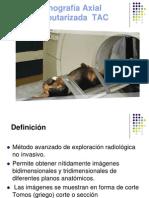 Tomografía Axial Computarizada  TAC