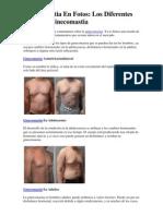 Ginecomastia en Fotos