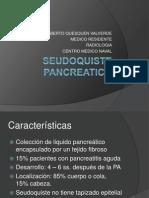 SEUDOQUISTE PANCREATICO