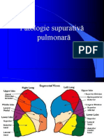 abcese pulmonare