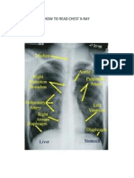 How to Read Chest X-ray