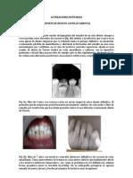 Alteraciones Dentarias (Aporte Renato)