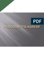 Periodontitis agresif