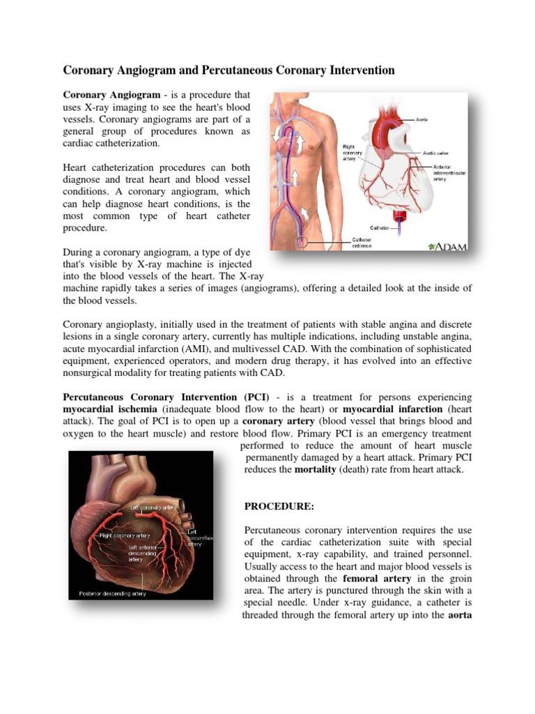 CathLab Report | Percutaneous Coronary Intervention | Angiography