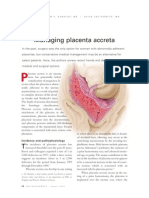 management placenta accreta