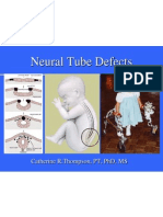 Neural Tube Defect Powerpoint 2004