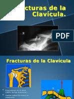 02-Clavicula Fractura Lux Ac Cl