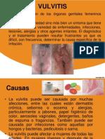 Vulvitis y Vaginosis2012.