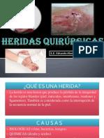 Heridas Quirurgicas - EDITADO