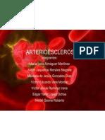 Arter i Oe Sclerosis