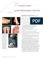 Working with Hammertoes