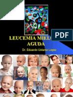 Leucemias Mieloides Agudas1
