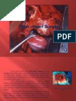 Open Heart Surgery