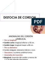 Distocia de Cordon