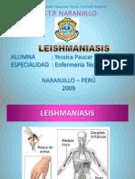 LEISHMIANIASIS