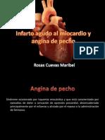 Infarto Agudo Al Miocardio y Angina de Pecho
