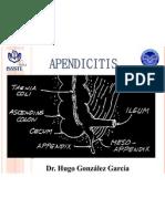 Apendicitis s