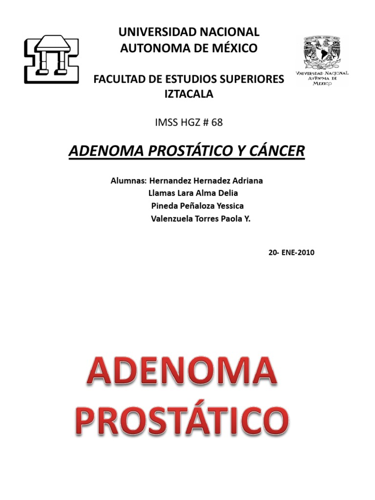 adenoma prostatico en linea