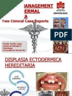 Casos Clinicos Displasia Seminario
