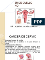 Cancer de Cervix