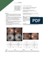 Bilateral Macular Choroiditis Following Chikungunya