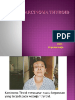 13 Epidemiology & Etiology of Thyroid Carcinoma