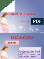 Parto Patologico