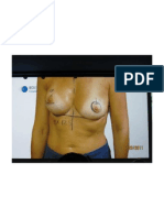 Mastectomy With Reconstruction