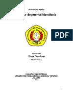 Fraktur Segmental Mandibula