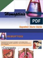 Epistaxis y Alza Termica
