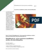 Protesis e Implantes