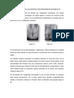 TRATAMIENTO DE LOS DIENTES CON RIZOGÉNESIS INCOMPLET1