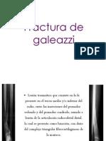 Fractura de Galeazzi
