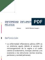 EPI Presentacion (Joseph)