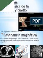 Anatomía Radiológica de la cabeza y cuello