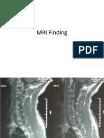 MRI Finding Case Presentation
