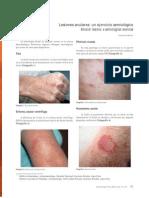 Lesiones Anulares Ejercicio Semiologico