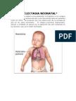 Atelectasia Neonatal- GEMA Y JOHANA
