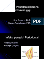 Kelainan Periodontal Karena Perawatan Gigi