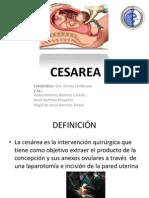 Indicaciones de Cesarea