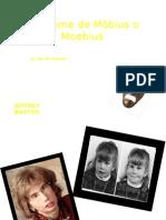 Síndrome de Möbius o Moebius